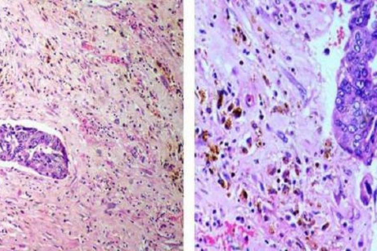 Figure 2(a,b): Tumor cells showing hemosiderin laden macrophages along with areas of fibrosis (H and E, 100x,200x).